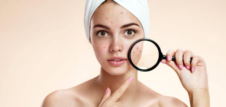 A acne adulta cresce e se agrava durante a pandemia